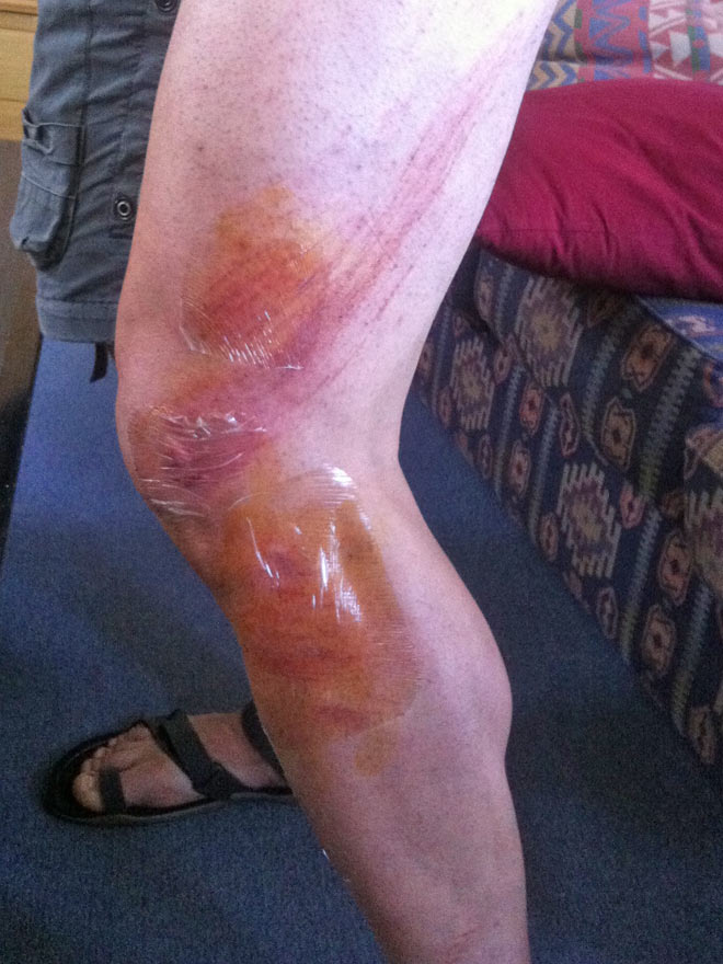 Applying second skin to the road rash